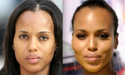 kerry-washington-no-makeup-acne